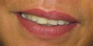 IMG_2139_lips_before_300px
